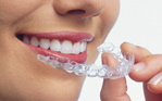 clear braces in Orem and Provo