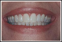 zoom whitening with a Provo dentist Orem Utah
