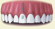 implant dentistry and tooth replacement with a Provo dentist Utah County and Orem