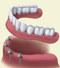 dentures vs dental bridge Provo dentist in Utah County
