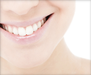 smile makeover candidates for porcelain veneers with a Provo dentist Orem Utah County